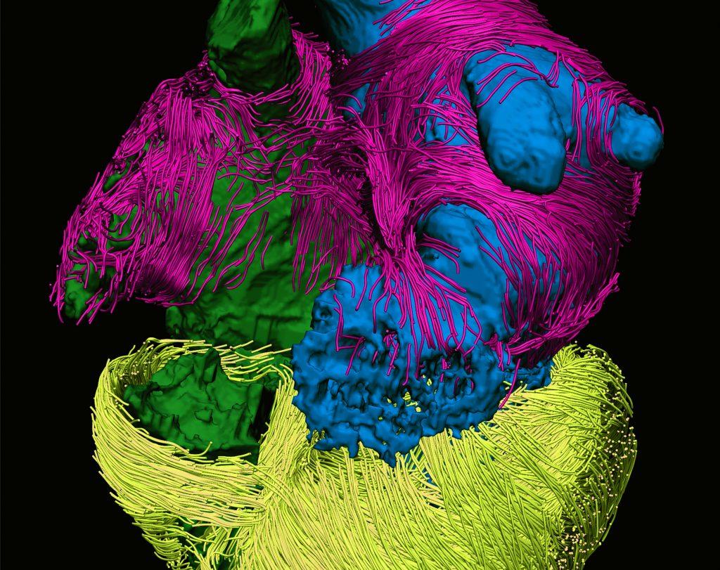 MRI image of human heart