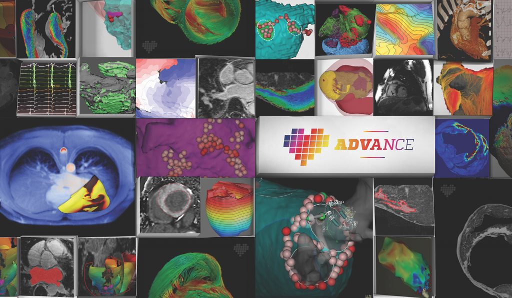 ADVANCE collage