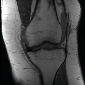 MRI scan using Wang's algorithm