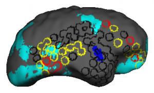 epilepsyfigure